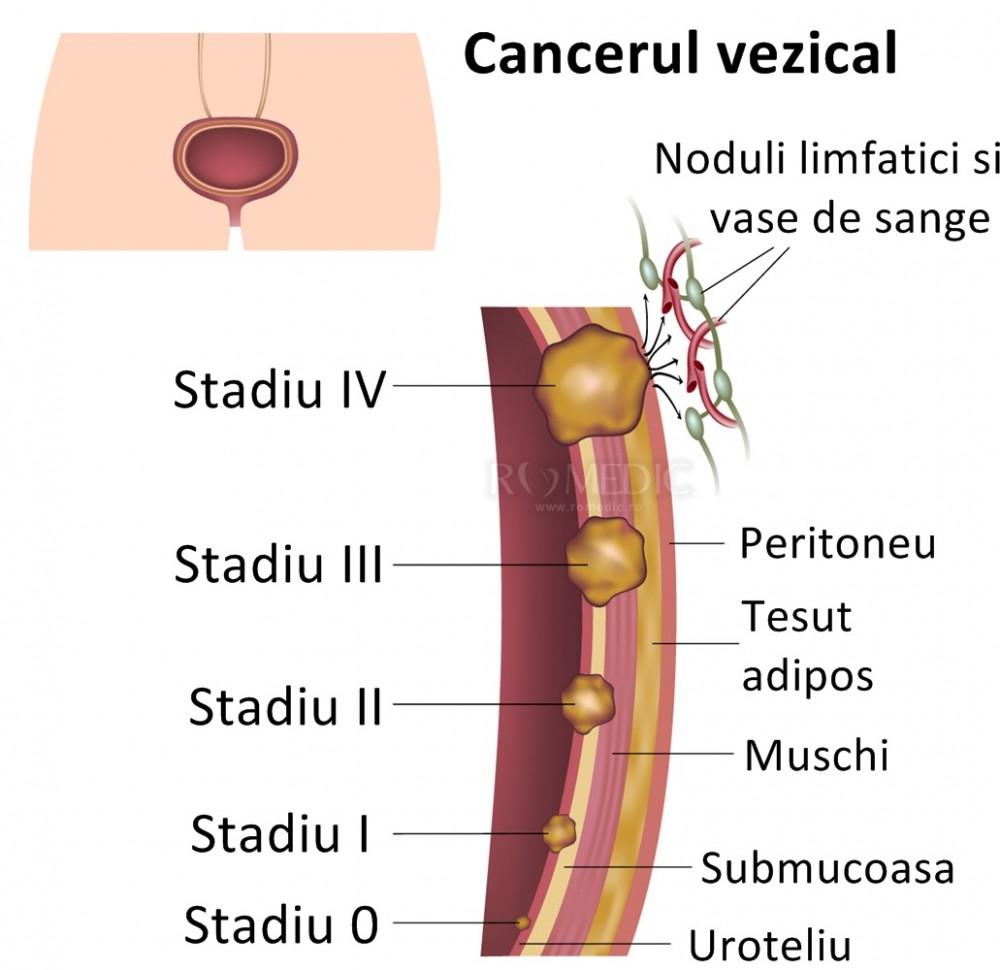 cancer vezica urinara stadiul 3)