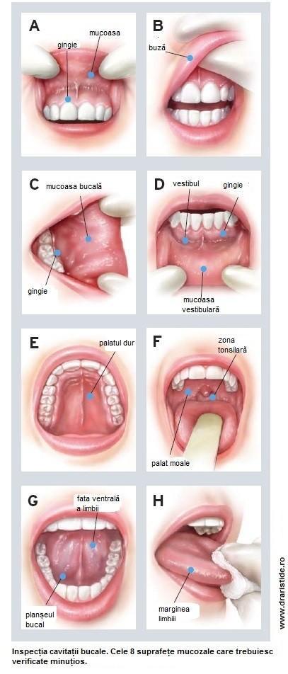 cancerul bucal manifestari)