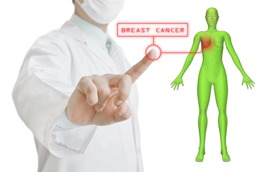 Tipuri de cancer mamar