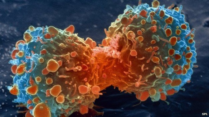 cancerul este vindecabil genetic cancer cells