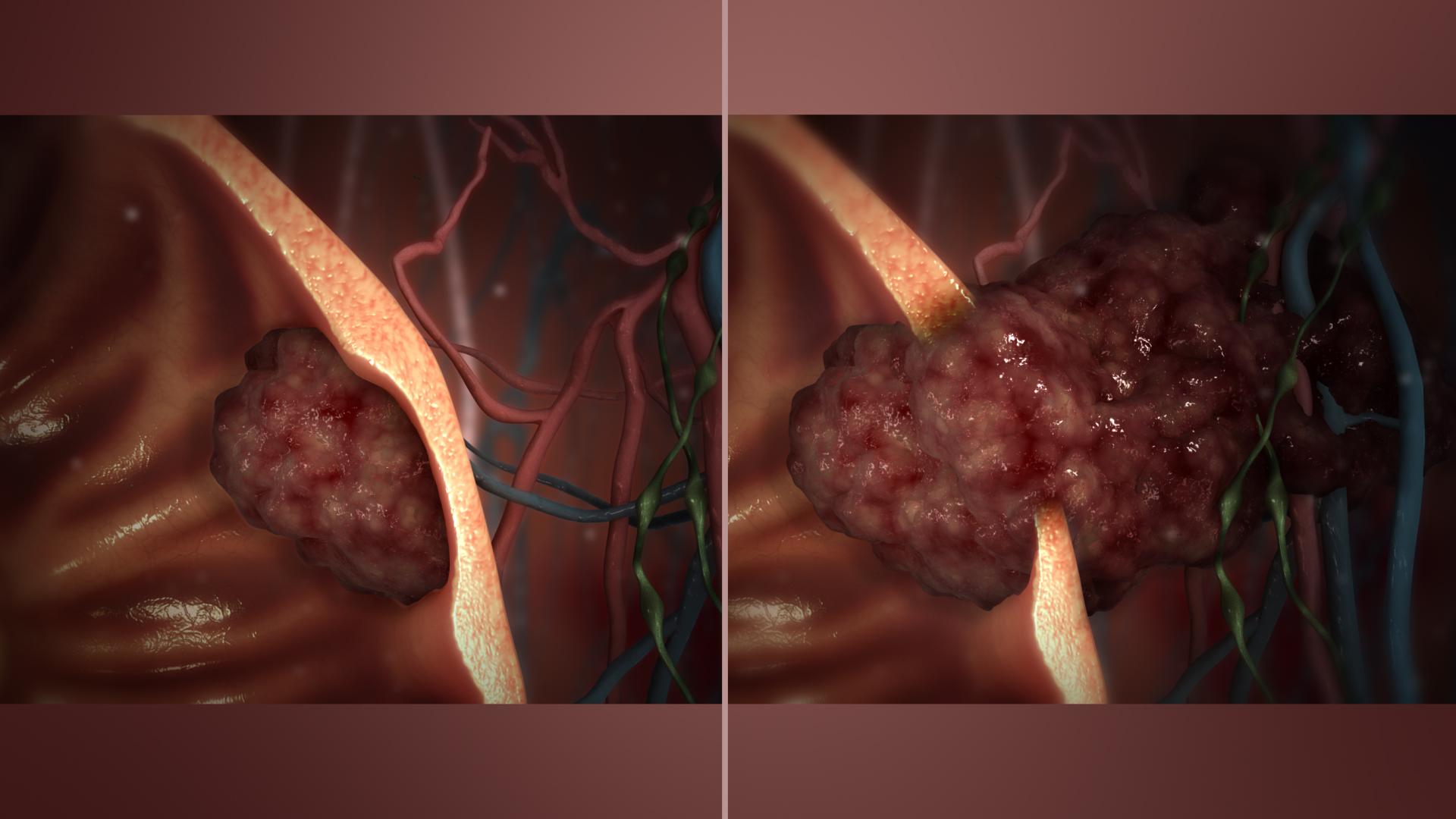 cancerul malign sau benign
