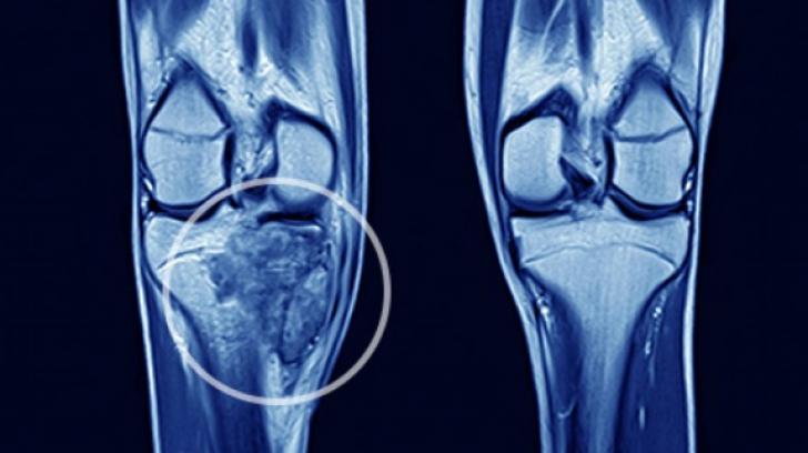 cauzele cancerului de oase papillary lesion of biopsy