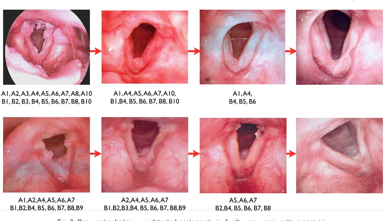 recurrent respiratory papillomatosis and bevacizumab treatment