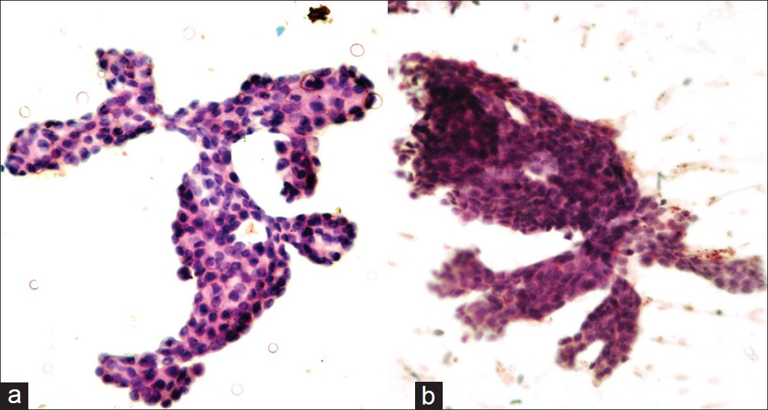 papillary lesion of breast cytology