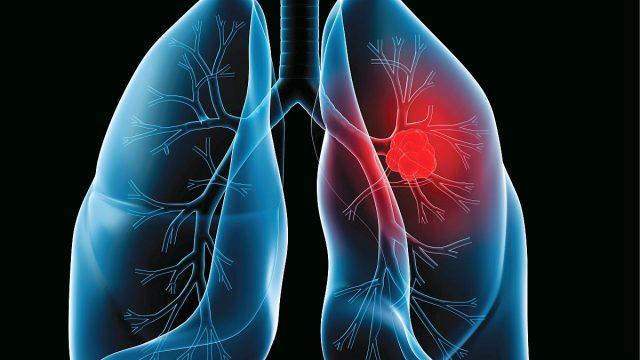 cancer pulmonar la 30 ani
