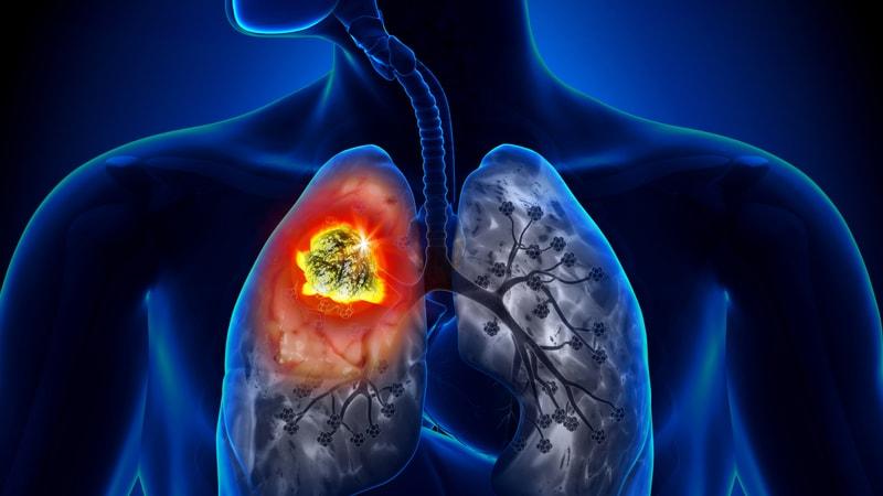 cancer pulmonar imunoterapie