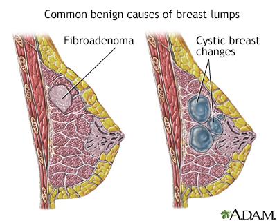 benign cancer fibroadenoma)