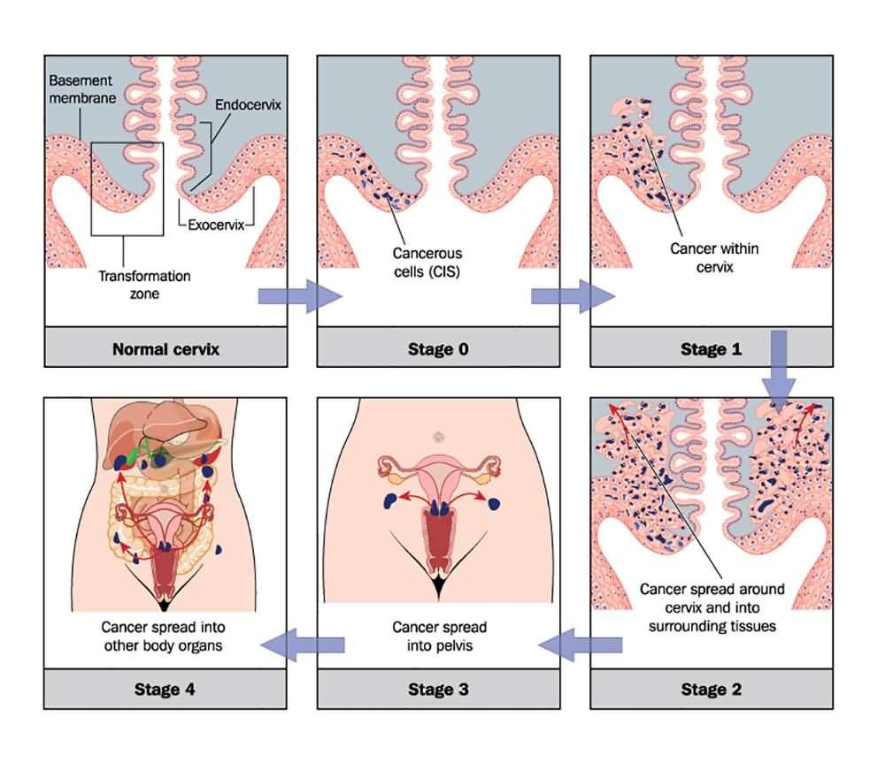 cervical cancer figo 2019)
