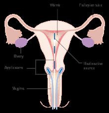 cervical cancer kya hai