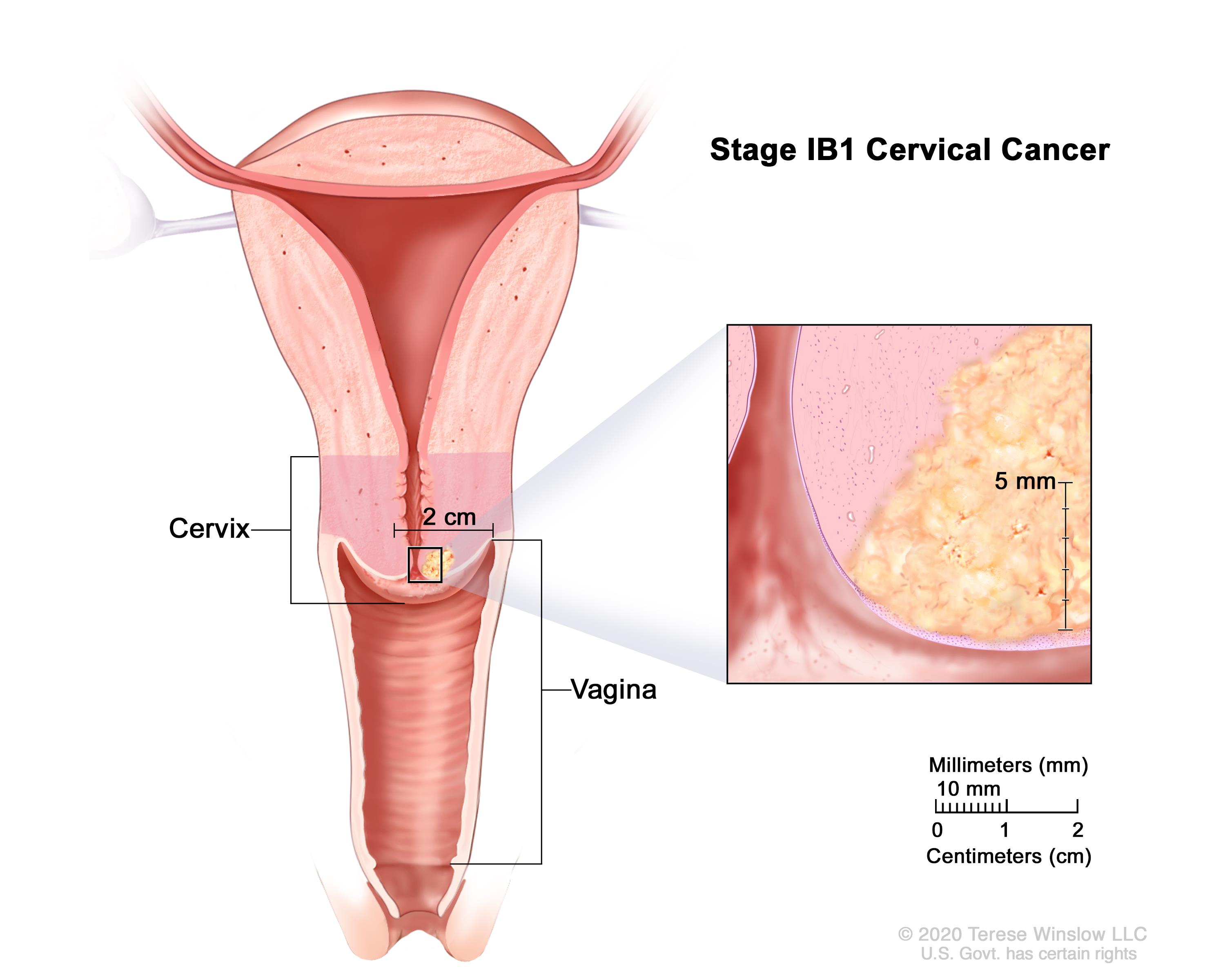 cervical cancer pregnancy after papillary thyroid carcinoma encapsulated variant