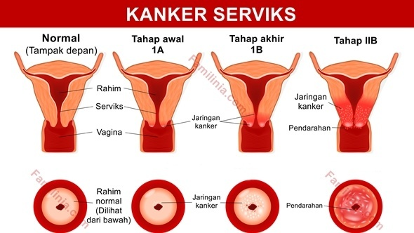 cervical cancer pregnancy after