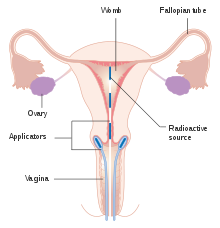cervical cancer who definition