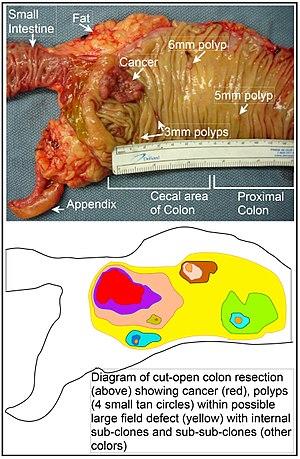 Cancerul esofagian - simptome și tratament