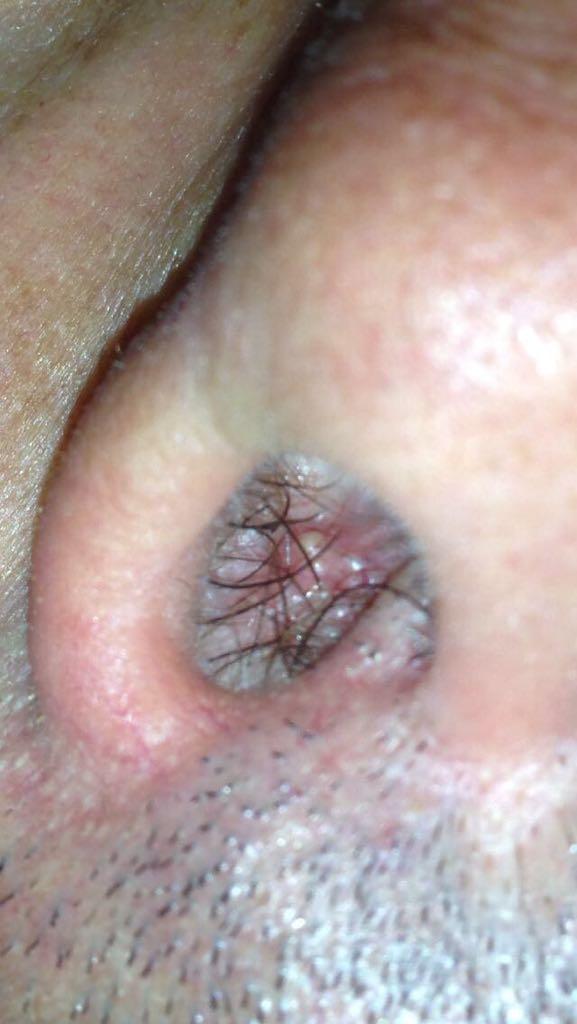 tampone per papilloma virus gola