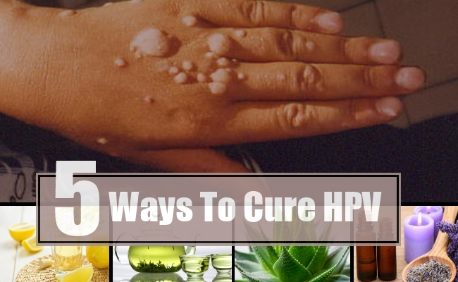hpv virus cure