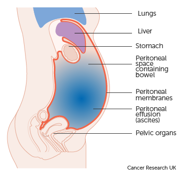 colon cancer abdominal fluid)