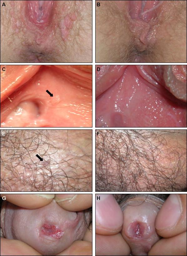 condyloma acuminata literature hpv symptoms uk