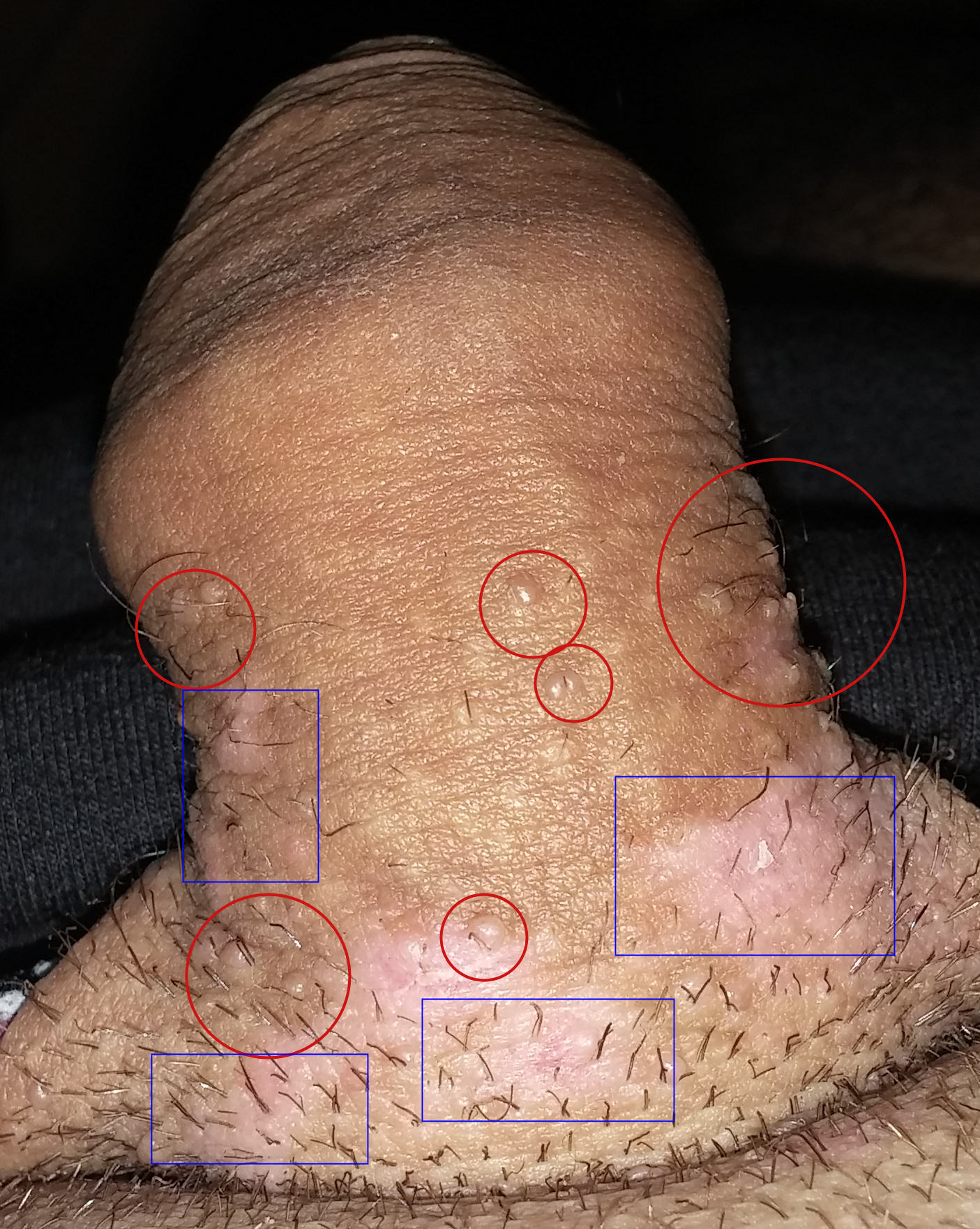 condylomes ou papillomavirus)