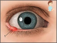 papilloma palpebrale cause