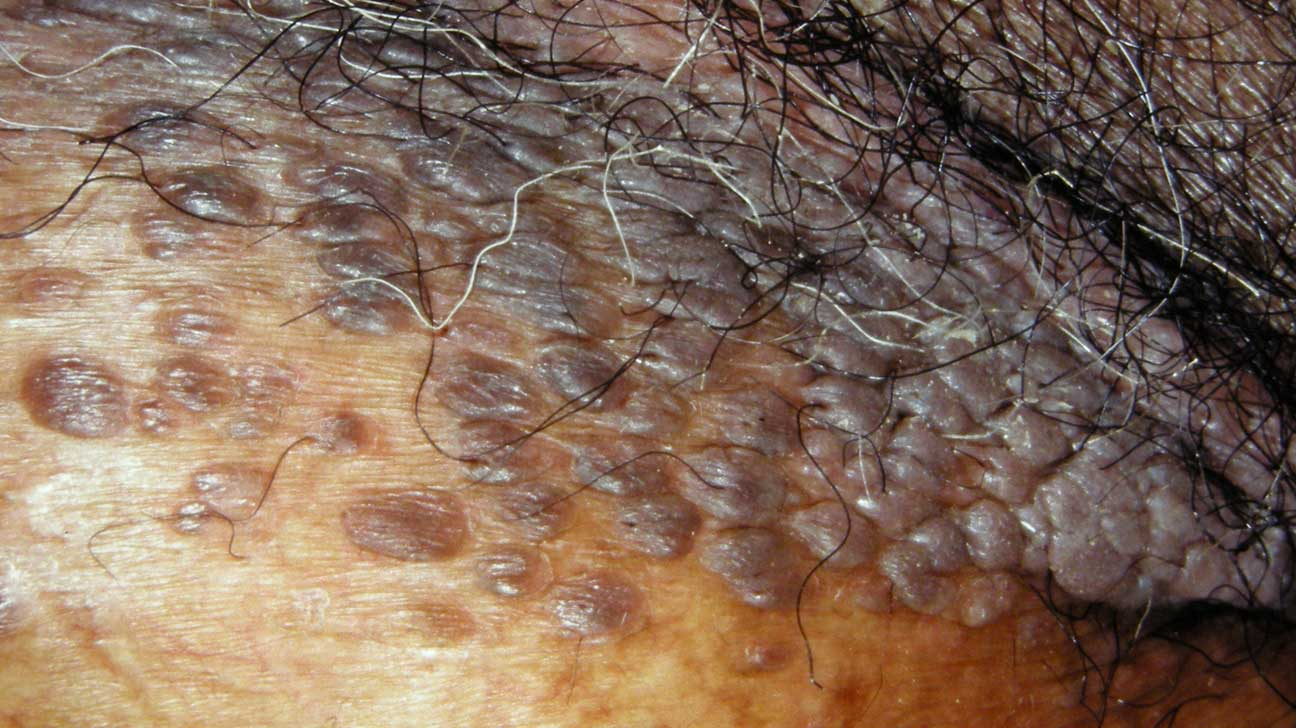 Manifestările cutanate ale infecţiei cu virusul papiloma uman