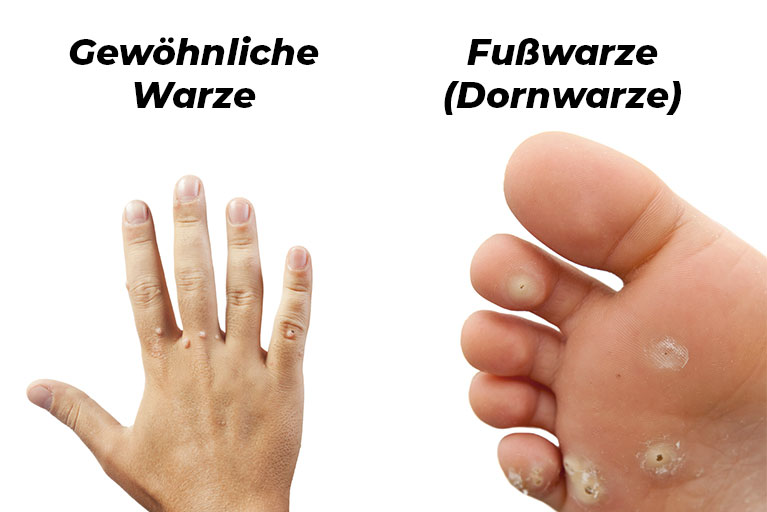 hpv warzen finger juvenile recurrent respiratory papillomatosis