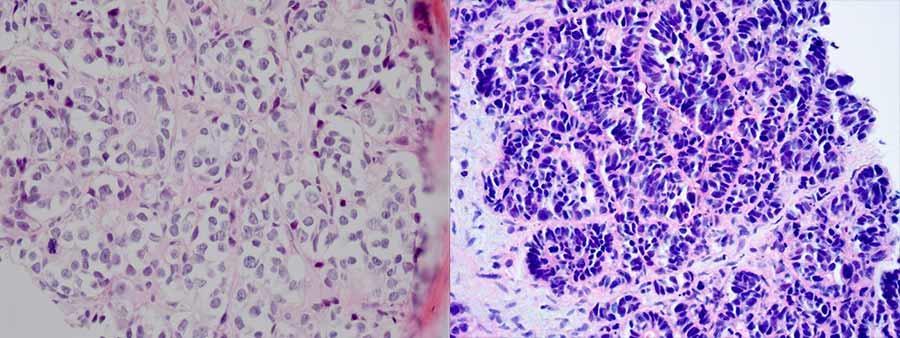 laser papilloma virus costo