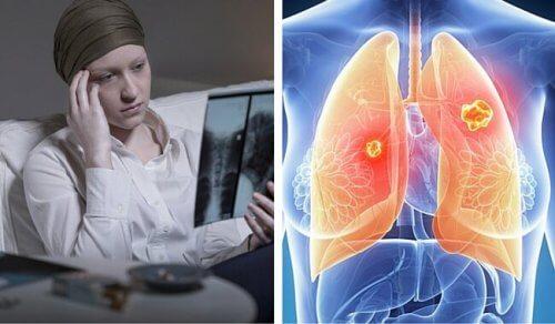 Semne de alarma: cancere
