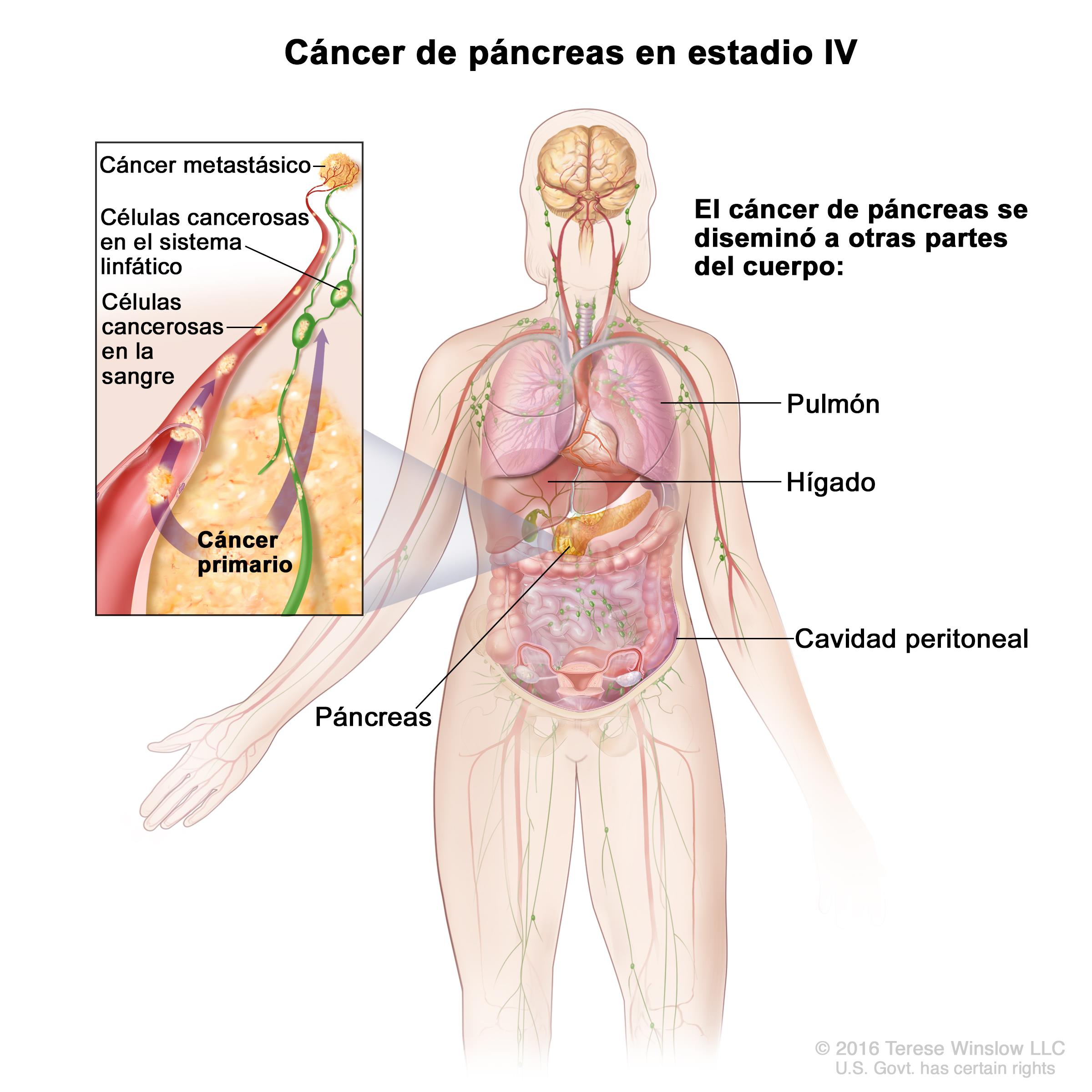 cancer de pancreas e higado etapa final