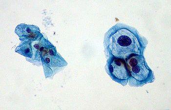 papiloma humano noxa