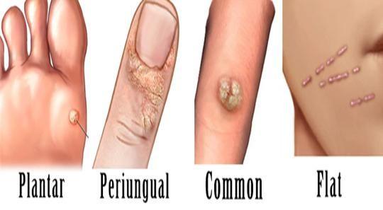 5 remedii naturale pentru infecția cu HPV