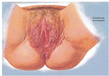 papiloma virus humano cuello uterino)