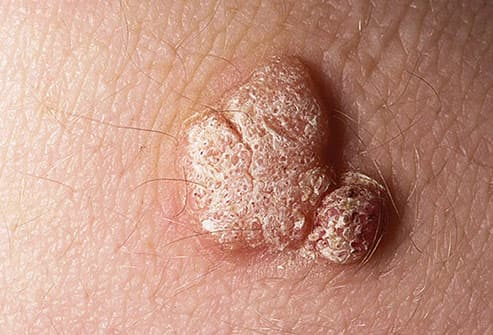 wart virus outside body)