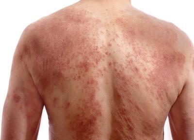dermatite da stress)