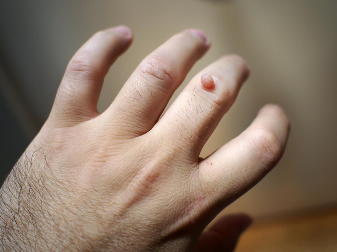 wart treatment blood blister