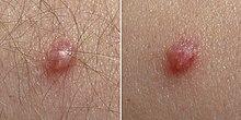 papillomavirus homme symptome