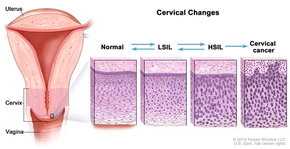 Cancerul cervical