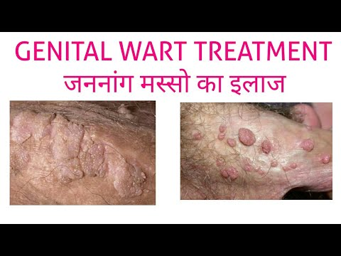 hpv meaning in hindi)