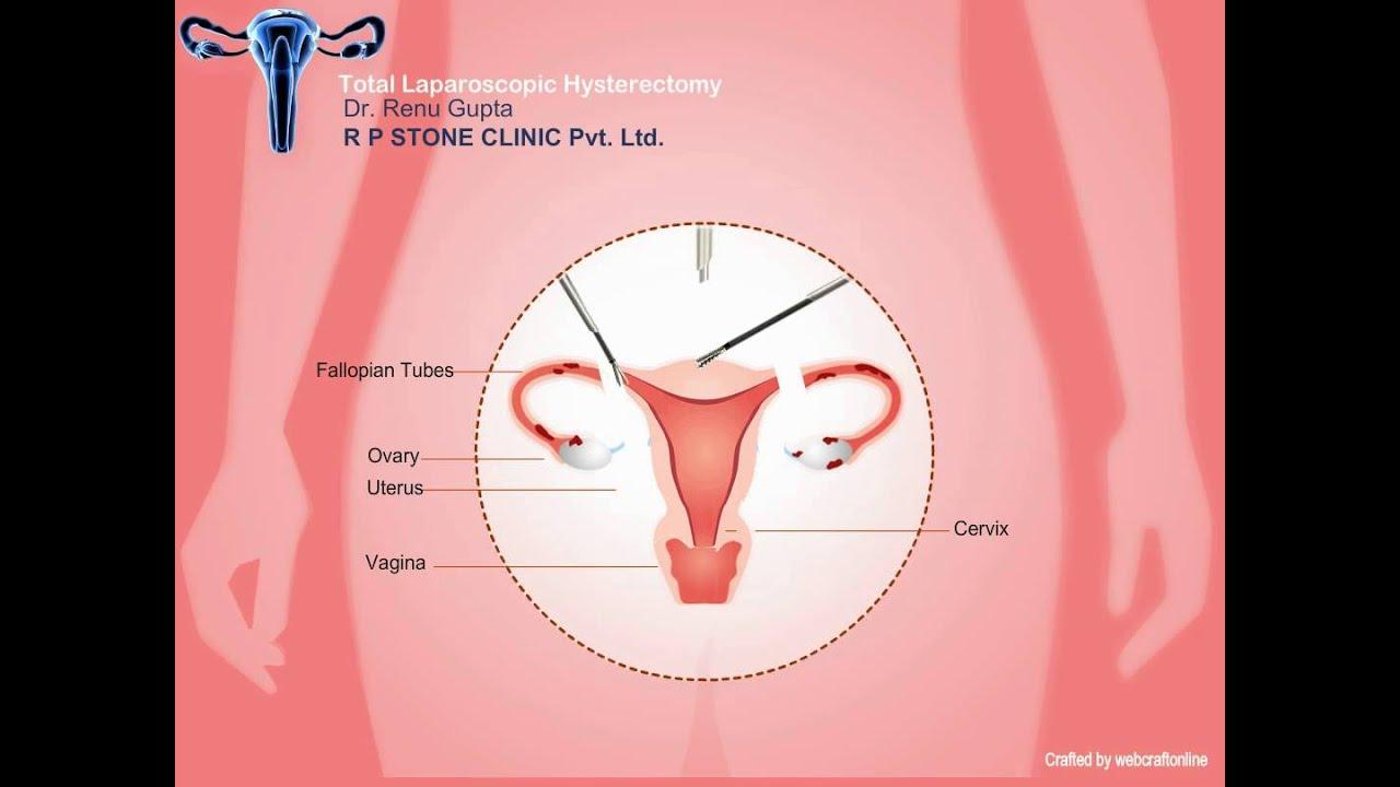 cancer ovarian dupa histerectomie