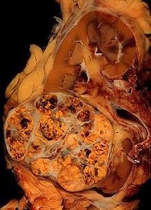 cancer renal macroscopia