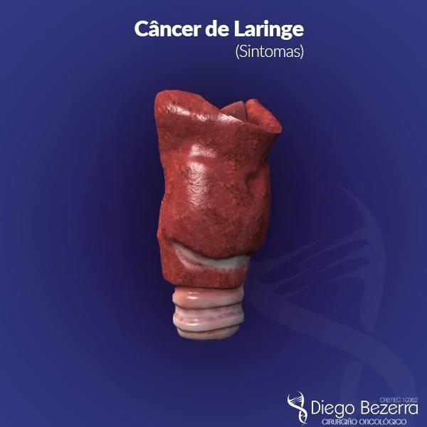 cancer glotico laringe