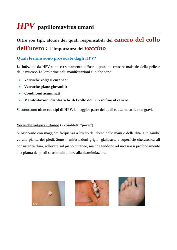 papilloma virus malattia)