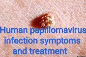 how to treat human papilloma virus)