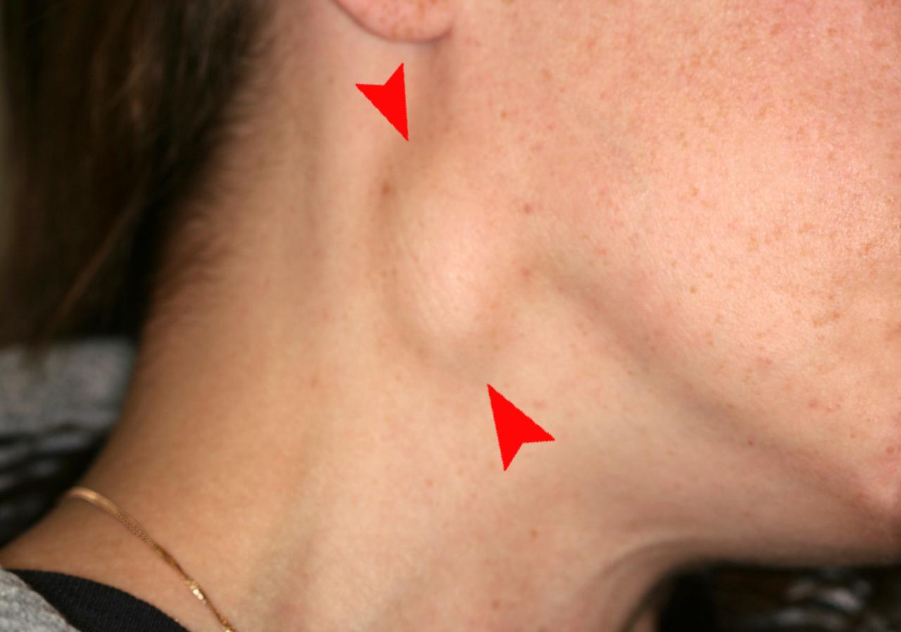cancer bucal metastasis)