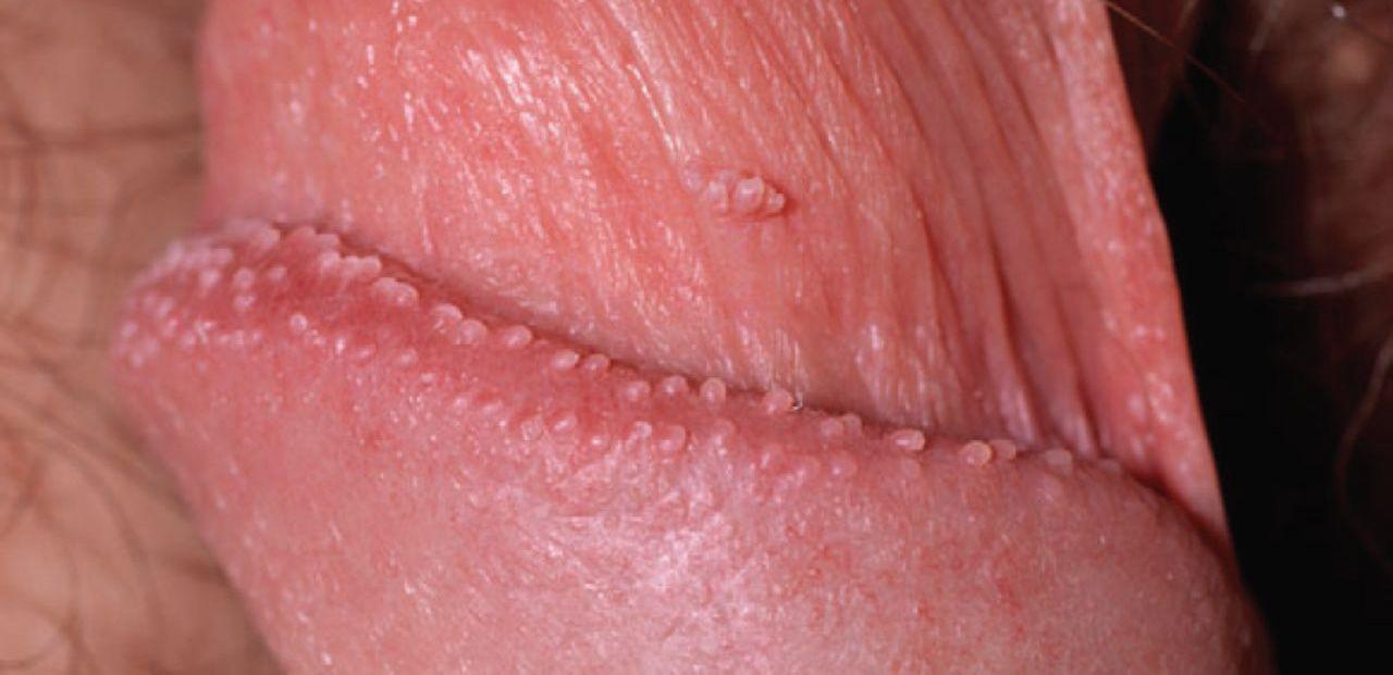 virus del papiloma humano verrugas en hombres)