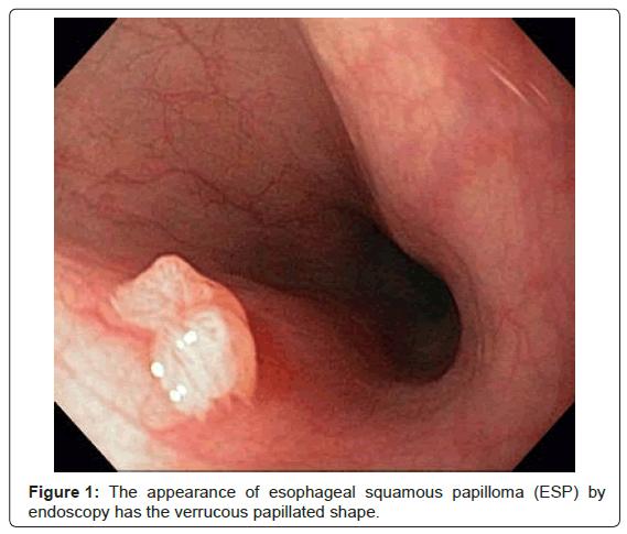 Riscurile și profilaxia stărilor precanceroase ale esofagului