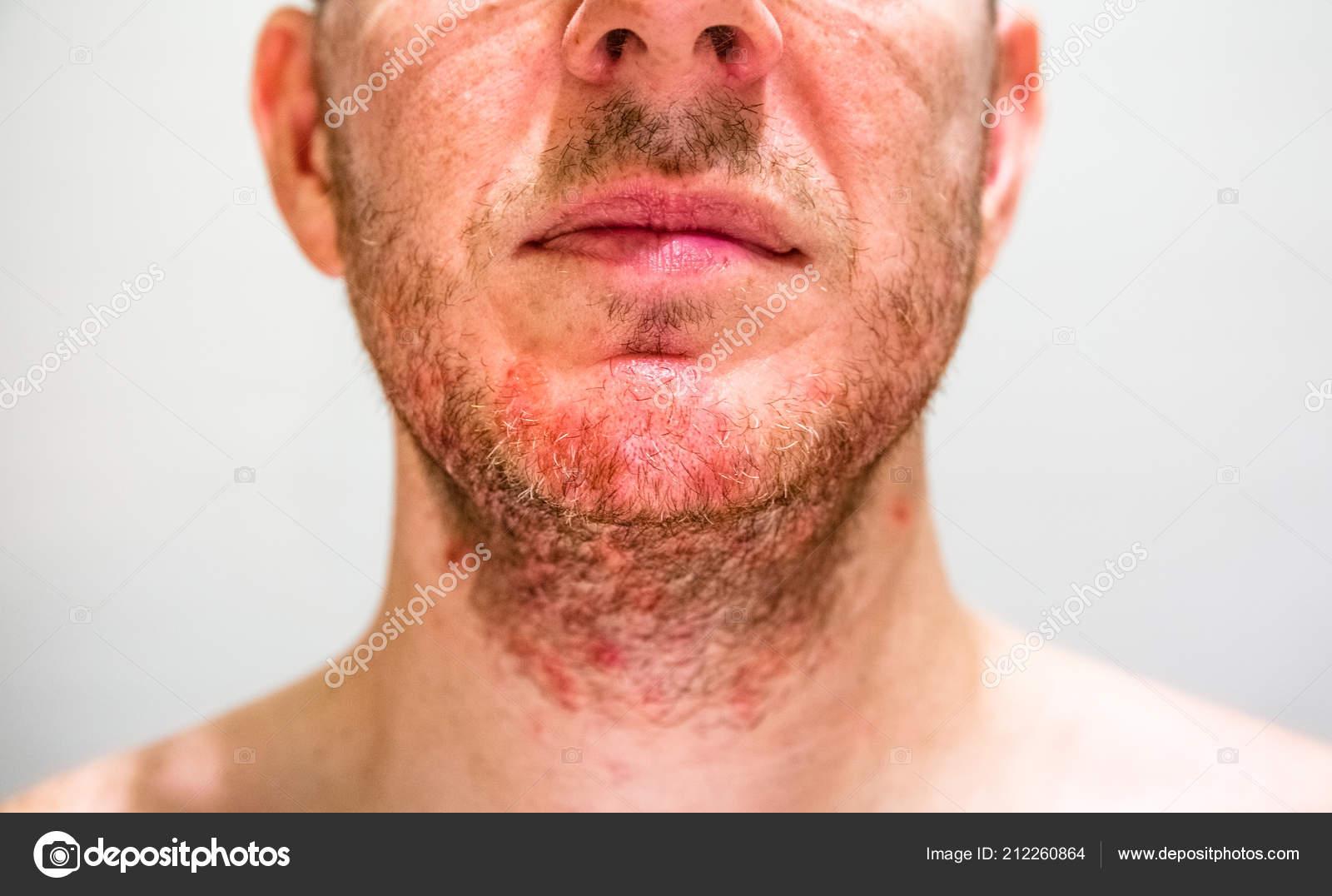 dermatite barba tratament pt gripa