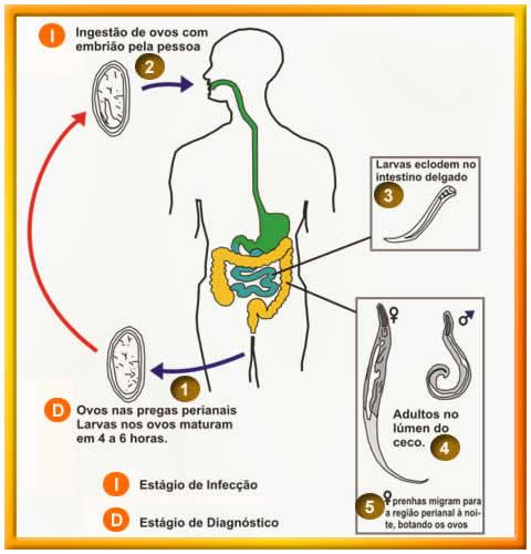 oxiurose causa sintomas tratamento e prevencao