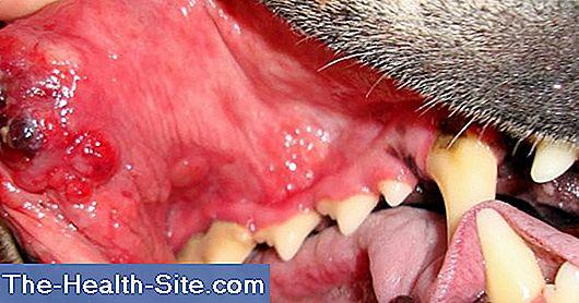 traitement papillomavirus hpv 16