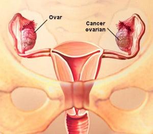 veruci genitale la femei simptome