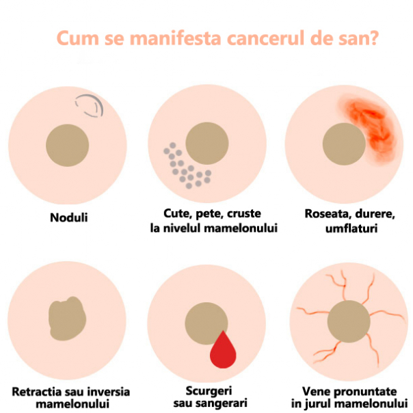 doare cancerul de san familial cancer vs hereditary